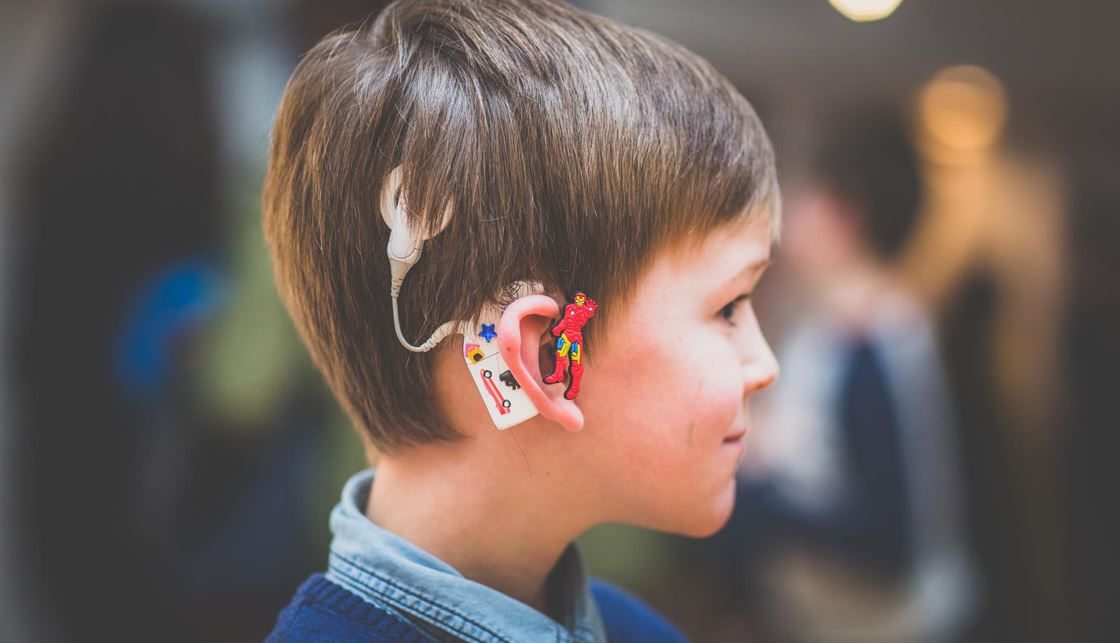 Personalise your hearing aid | Personalising cochlear implants