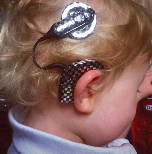 Cochlear implant decorated with race car checks