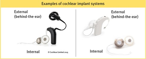 Examples of cochlear implant systems