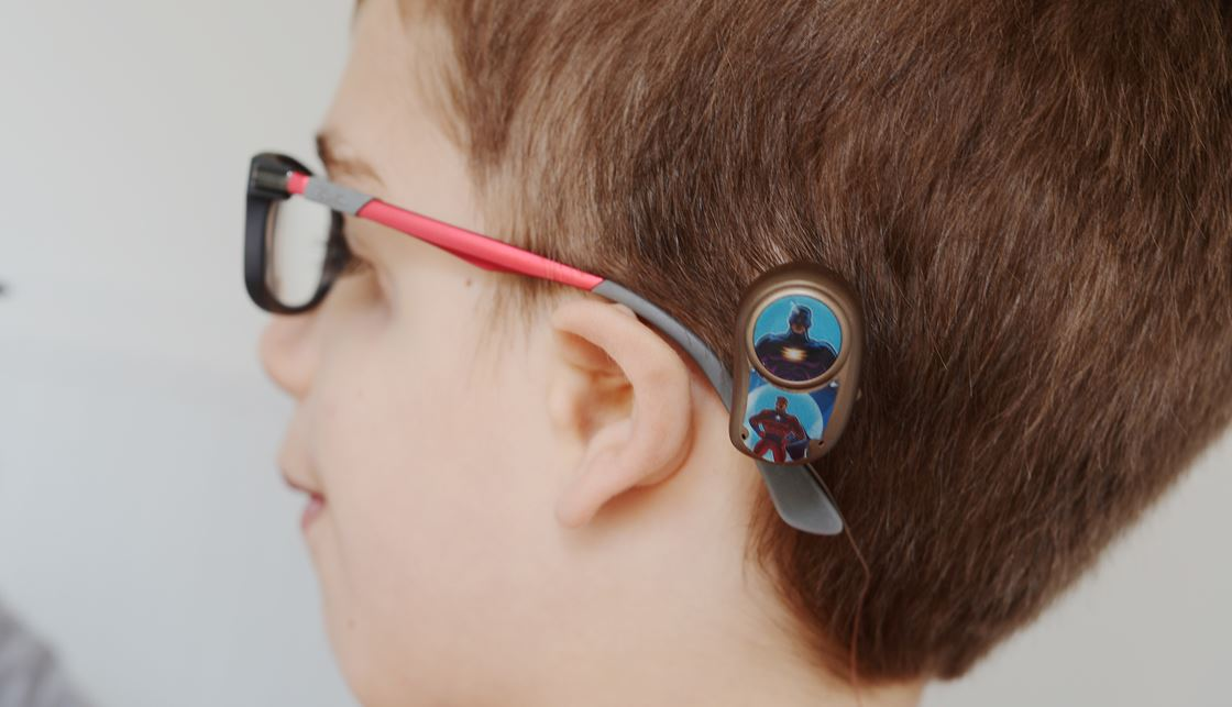 Advantages and disadvantages   Bone conduction hearing devices